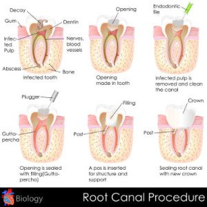 Chart and diagrams of the different stages of a root canal procedures.